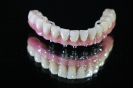 Full lower arch gold base screw retained implant prosthesis
